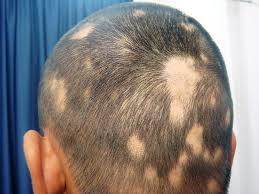 patcy hair loss in Alopecia-areata image