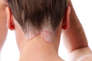 symptoms of Psoriasis image