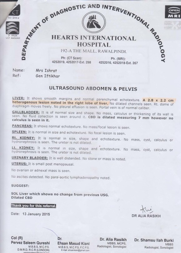 Medical Report Showing Liver Cancer of Mrs. Ishrate