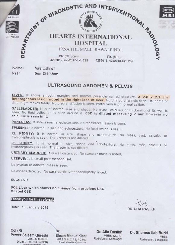 Medical Report Showing Liver Cancer of Mrs. Ishrate