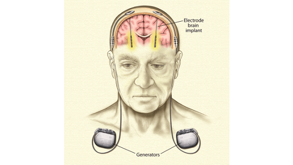 Electrode placement in brain to treat Parkinson's Disease