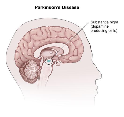 What Causes Parkinson's Disease