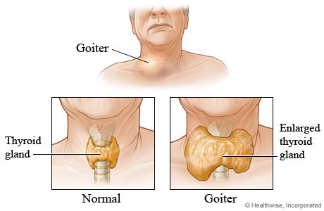 Goiter and enlarged thyroid glands image