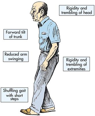 what are common symptoms of parkinson's disease