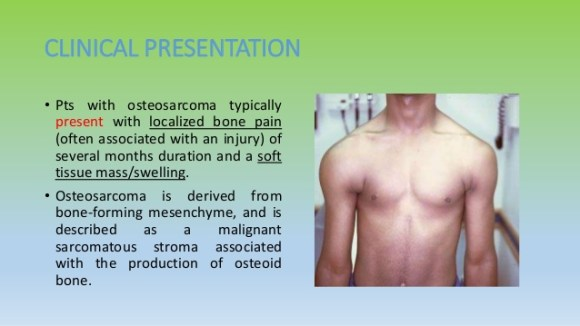 causes of osteosarcoma