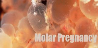 what moleor pregnancy and its treatment