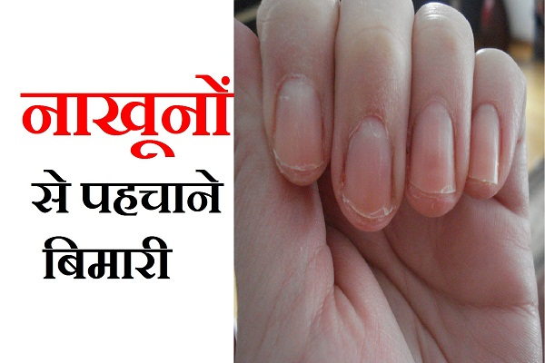 secret of your health through nails