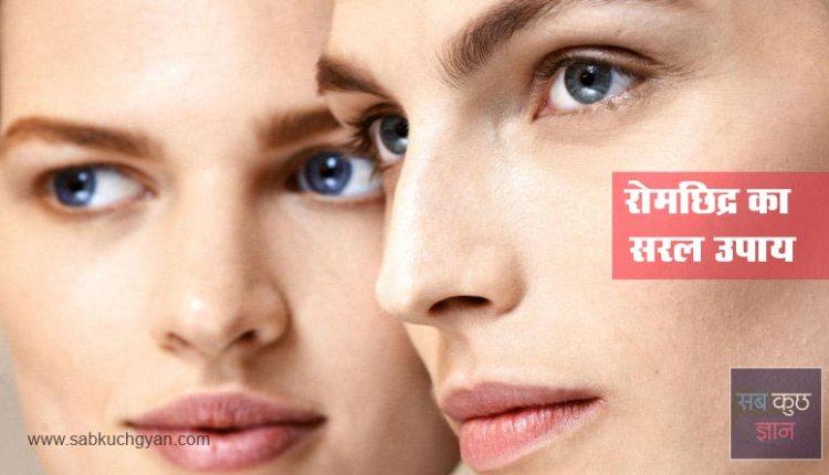 remedies-skin-pores