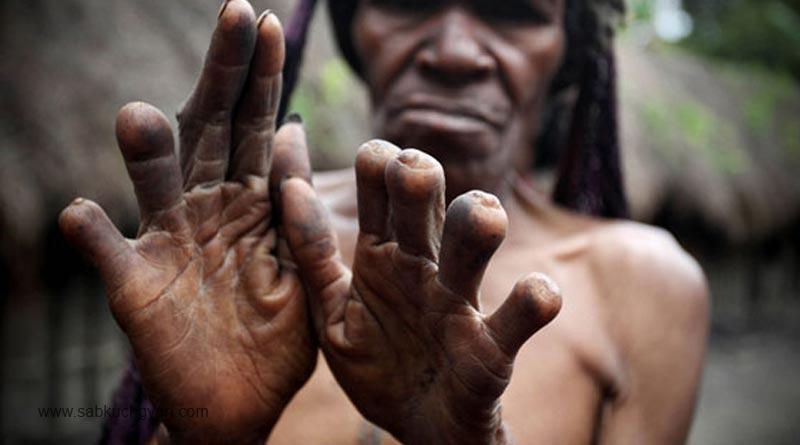 Finger-Cutting-(Indonesia)-the-plaid-zebra