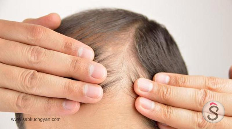 Hair-loss-A-hair-surgeon-has-revealed-if-home-remedies-to-cure-balding-actually-work-4
