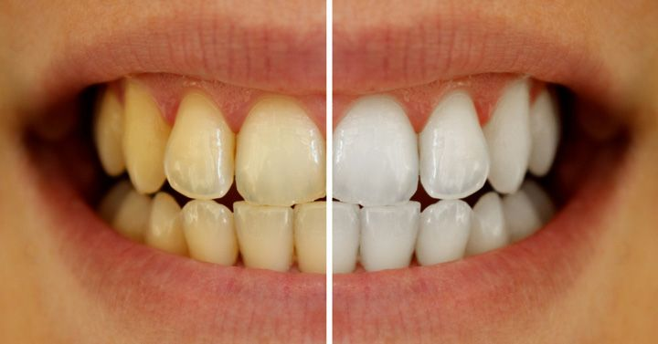 successful-treatment-for-whitening-yellow-teeth