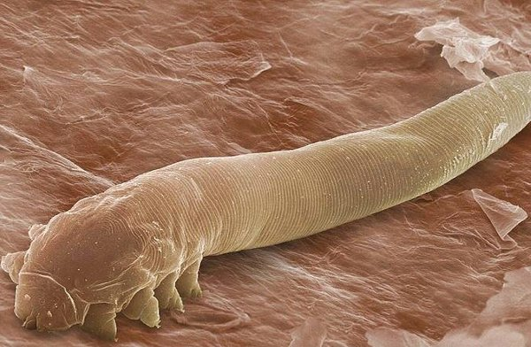How can you know the dangerous organism of the name Demodex on your eyes (2)