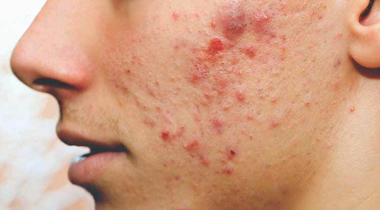pimple and acne remedy in hindi