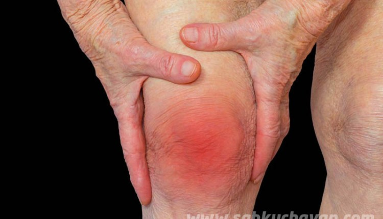 These oils are very beneficial in arthritis