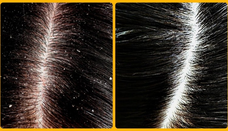 How to Get Rid Of Dandruff This Easy Remedy