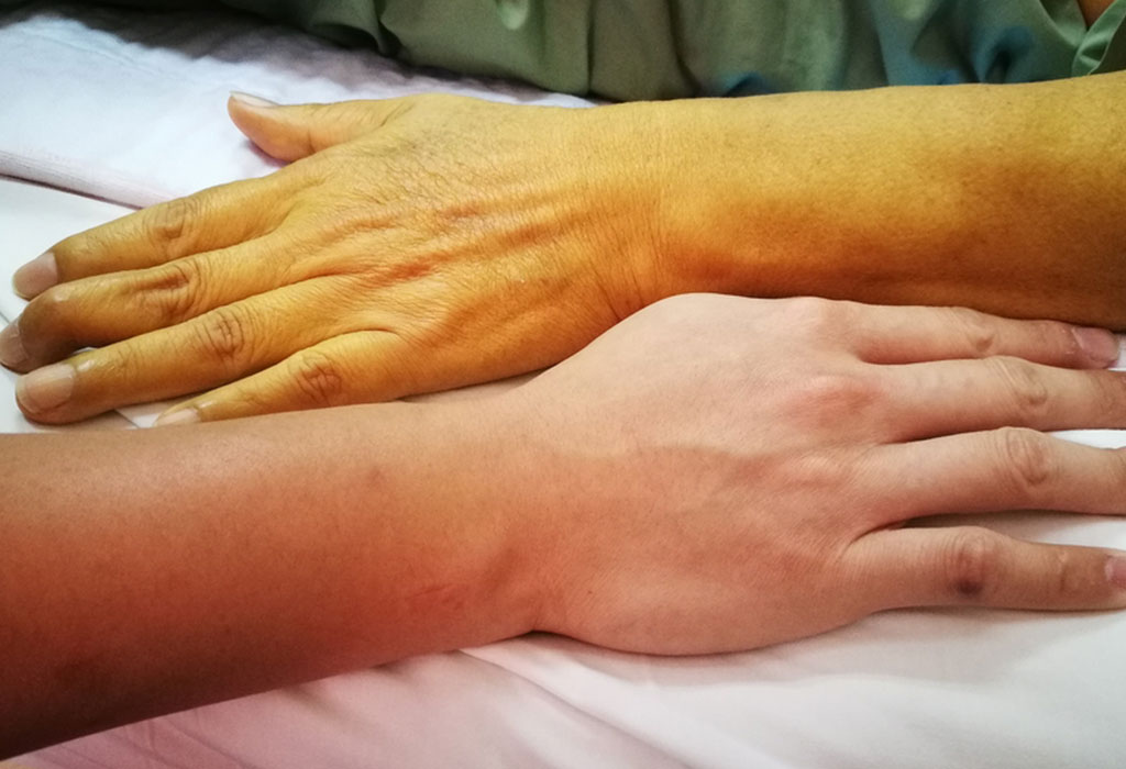 7 Home remedies and treatments of jaundice