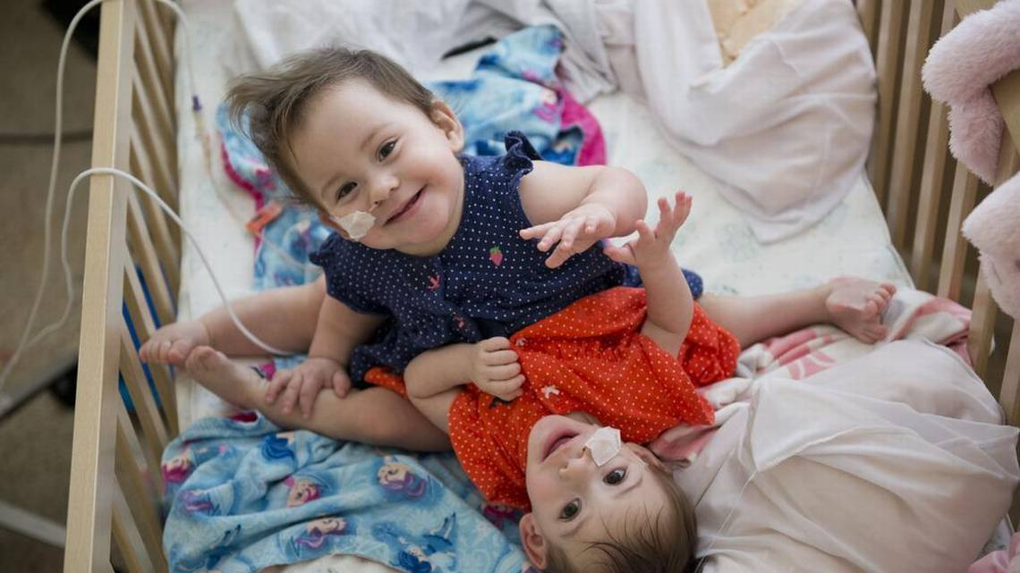 Sandoval conjoined twins  The Sacramento Bee