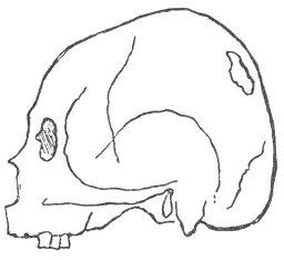 PERUVIAN INCA SKULL, FROM THE ANCIENT CEMETARY OF PAHACAMAC.