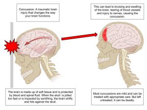 Concussion diagnosis