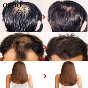 FREE SHIPPING Morocco Herbal Ginseng Hair Care Essence Treatment For Men And Women Hair Loss Fast Powerful Hair Growth Serum Repair Hair root discount