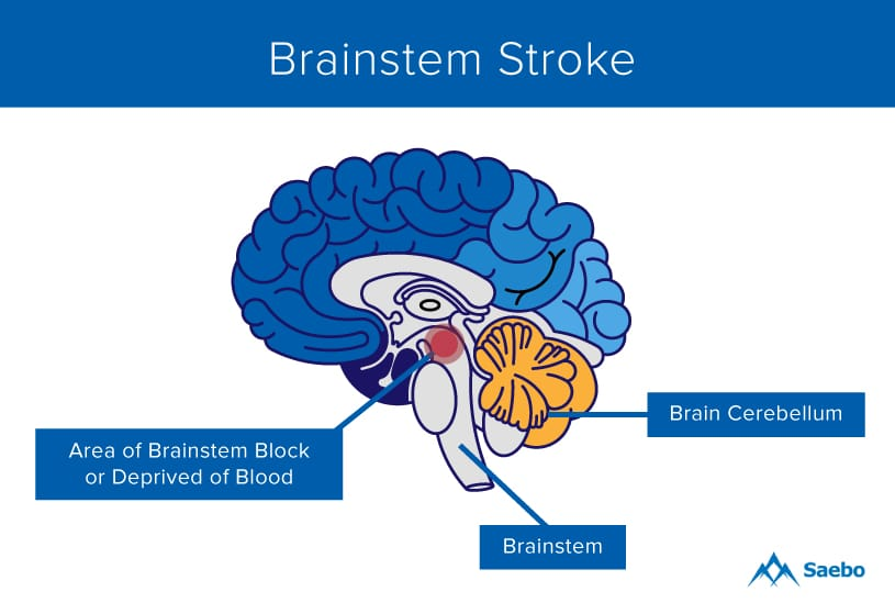 brain diagram pons power at light wiring what is a brainstem stroke saebo