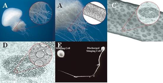 Description: Jellyfish stinging mechanism