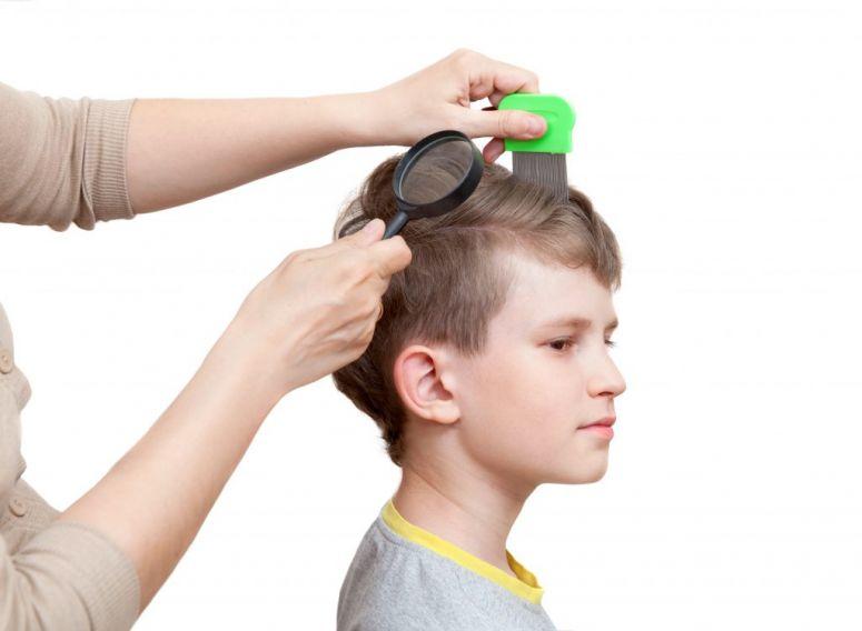 9 Cara Menghilangkan Kutu Rambut Ampuh Secara Cepat