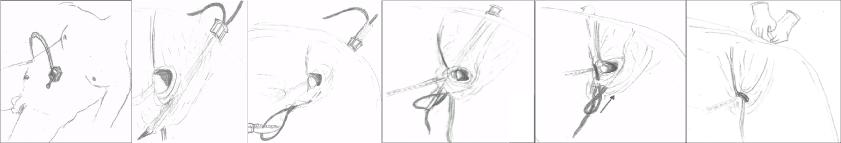 ped inguinal hernia 14