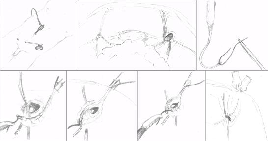 ped inguinal hernia 17
