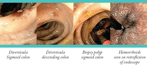 colonoscopy_page_7
