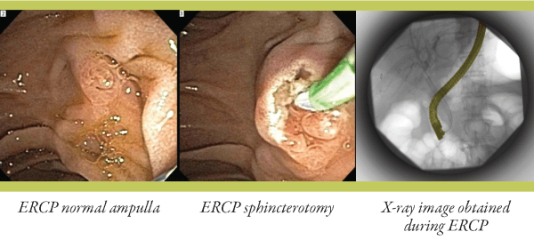 ercp_page_2