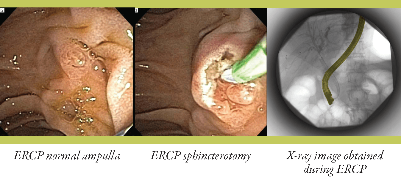 Ercp Endoscopic Retrograde Cholangio Pancreatography