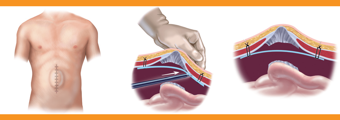 what to expect after umbilical hernia repair surgery