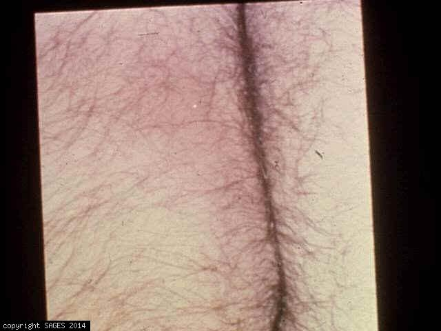 ischiorectal abscess