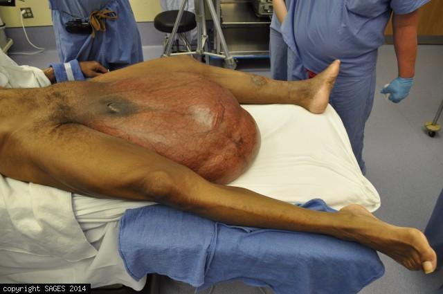 Large Groin Hernia