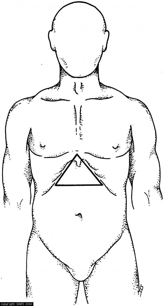 "Boundaries of ""minimal stress triangle"""