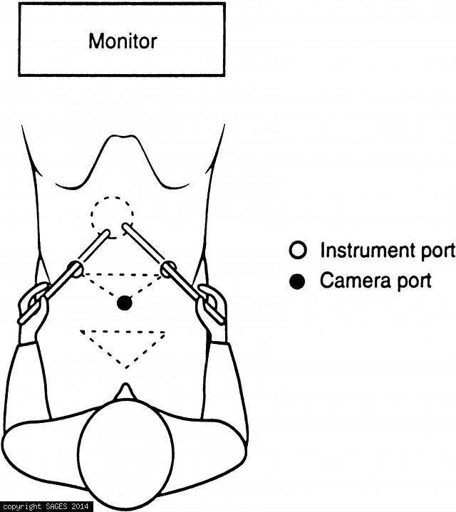 Laparoscopic Suturing & Intracorporeal Knot Tying