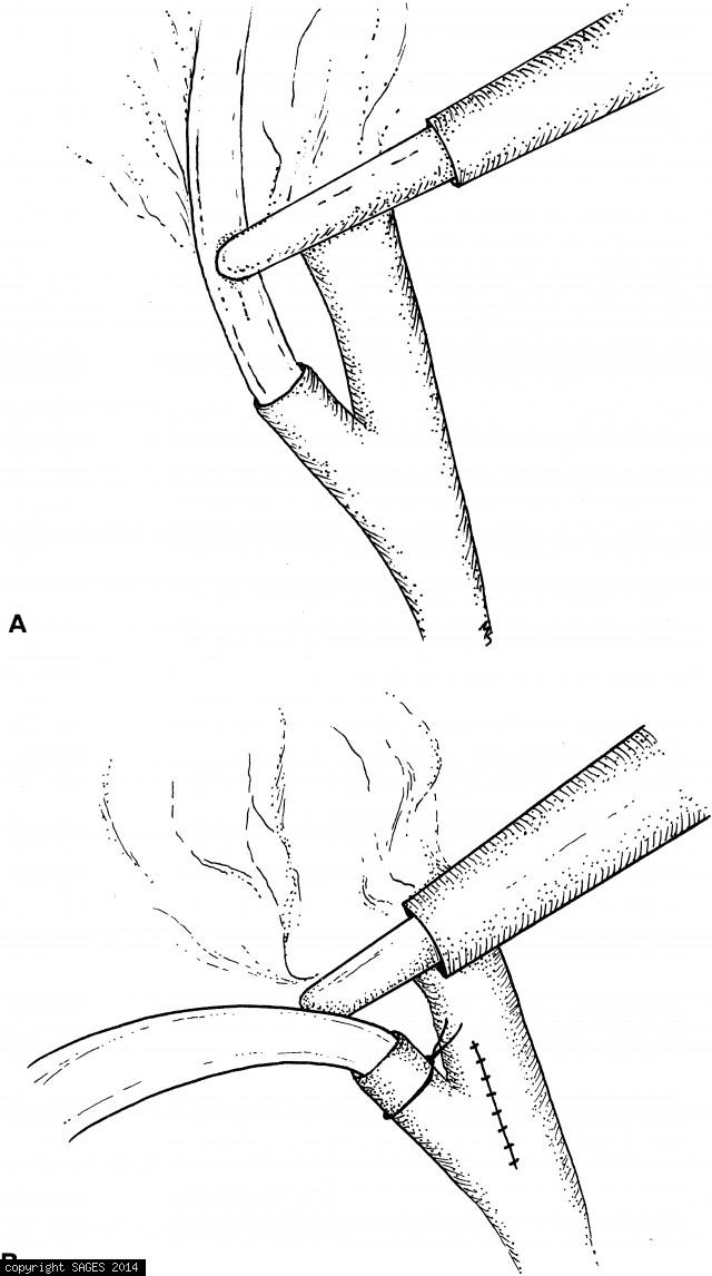 Fixation of the biliary decompresion cannula