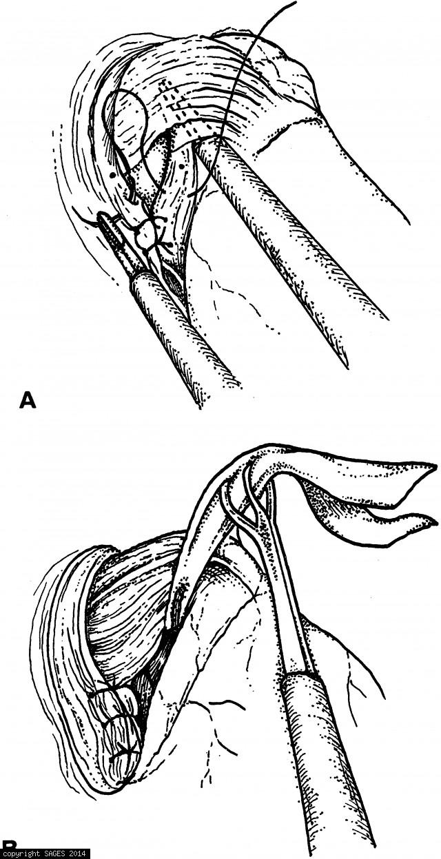 Exposure of the crura