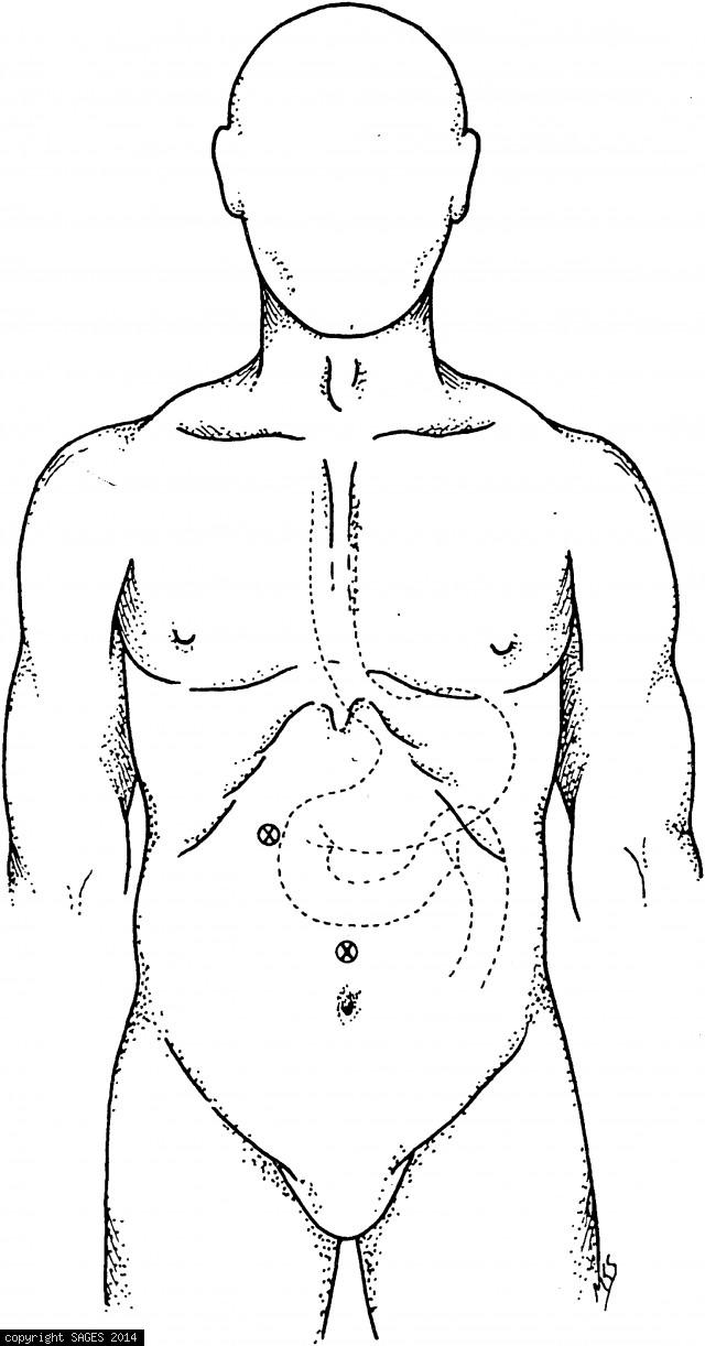 Cannula placement for Gastrostomy