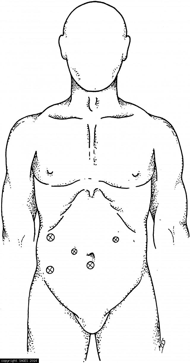 Port sites for laparoscopic gastric resections