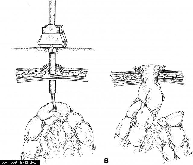 Laparoscopic colostomy