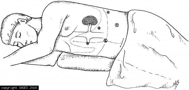 Patient Position and Trocar Placment