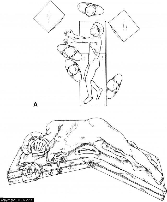 Patient position for laparoscopic transabdominal