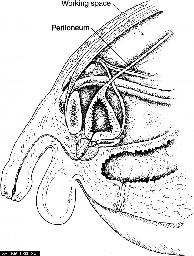 Sagittal view of extraperitoneal dissection