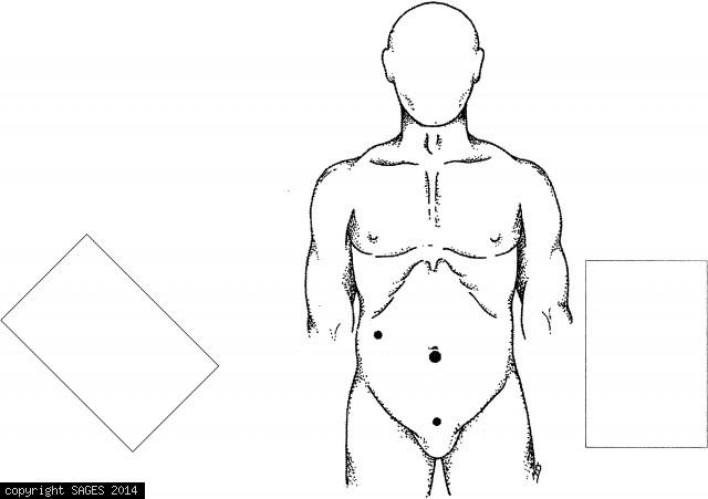 Trocar sites for laparoscopic appendectomy