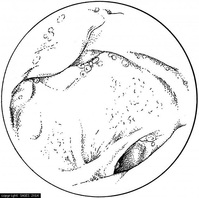 Endoscopic view of a choledochojejunal anastomosis