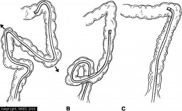 Formation of loops in the colon