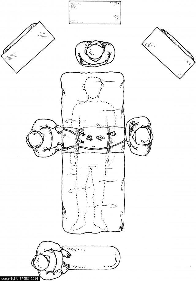 Setup gastric mobilization & tubularizarization