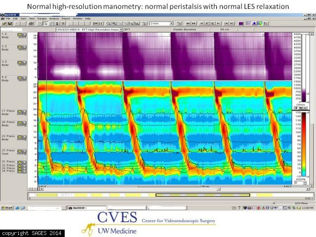 normal high-resolution manometry study